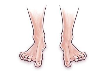חיזוק היציבה: אימון לכף הרגל ולאצבעות הרגליים